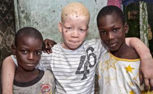 13 de junio: día internacional de sensibilización sobre el albinismo